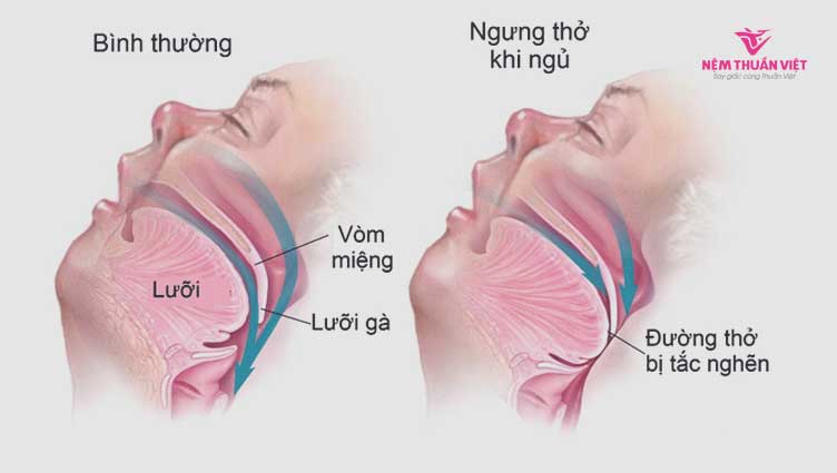 hội chứng bệnh ngưng thở khi ngủ là gì