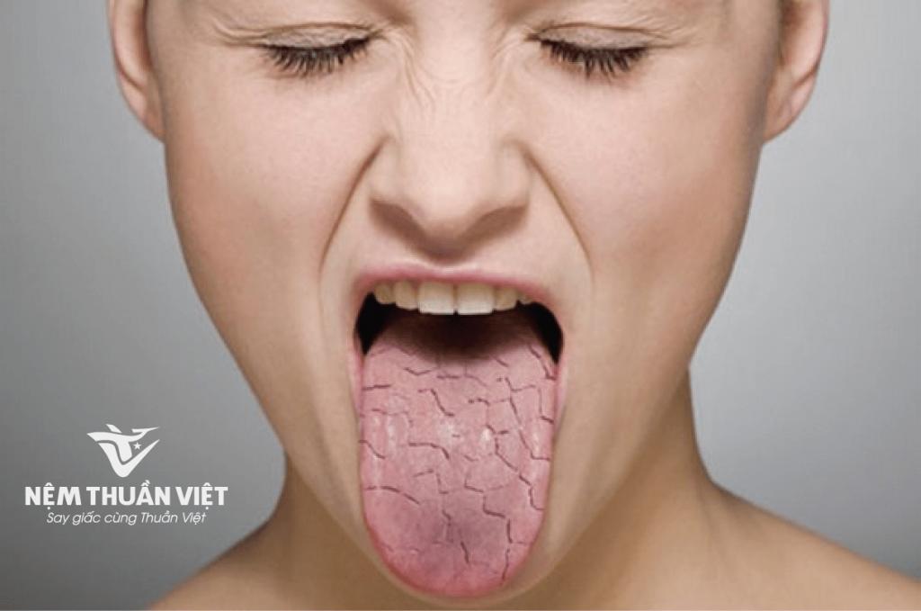 tác hại của cbd gây khô miệng